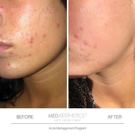 Medaesthetics - Medical Enzyme Peels - Before and After Picture 20200217142303 - Treatment performed by Doctor Ehsan Jadoon