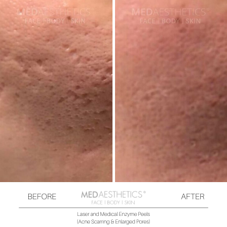 Medaesthetics - Medical Enzyme Peels - Before and After Picture 20200217142304 - Treatment performed by Doctor Ehsan Jadoon