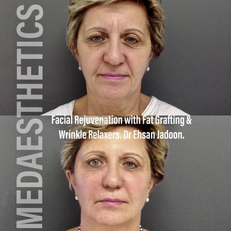 Medaesthetics - Cosmetic Facial Makeovers