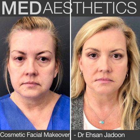 Medaesthetics - Cosmetic Facial Makeovers - Before and After Picture 20200427122445 - Treatment performed by Doctor Ehsan Jadoon