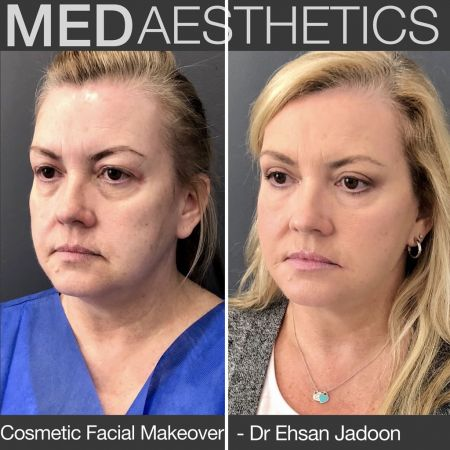 Medaesthetics - Cosmetic Facial Makeovers - Before and After Picture 20200427122444 - Treatment performed by Doctor Ehsan Jadoon