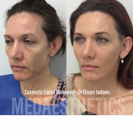 Medaesthetics - Cosmetic Facial Makeovers - Before and After Picture 20200521205321 - Treatment performed by Doctor Ehsan Jadoon