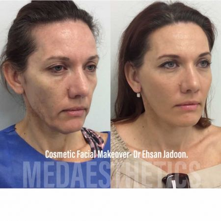 Medaesthetics - Cosmetic Facial Makeovers - Before and After Picture 20200521205323 - Treatment performed by Doctor Ehsan Jadoon