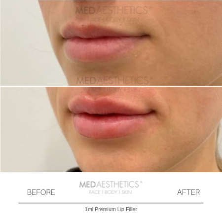 Medaesthetics - Lip Fillers - Before and After Picture 20200210164222 - Treatment performed by Doctor Ehsan Jadoon