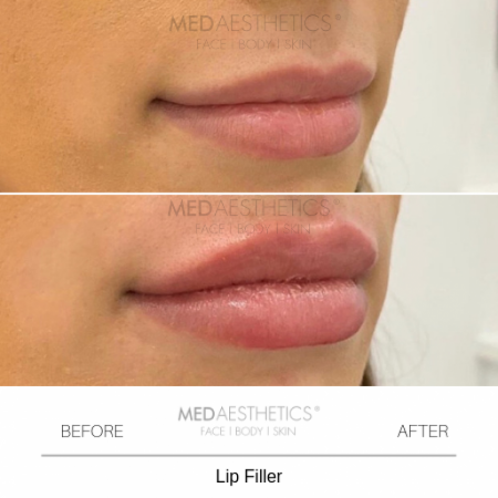 Medaesthetics - Lip Fillers - Before and After Picture 20200210164223 - Treatment performed by Doctor Ehsan Jadoon