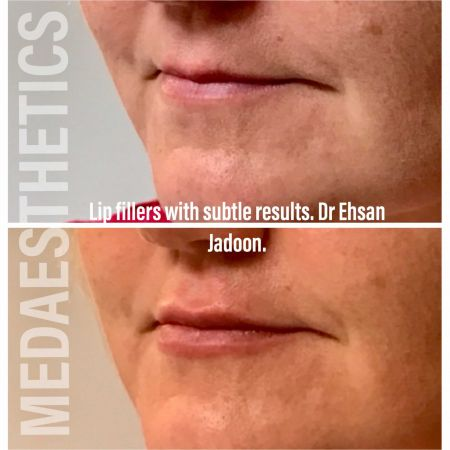 Medaesthetics - Lip Fillers - Before and After Picture 20200605232925 - Treatment performed by Doctor Ehsan Jadoon