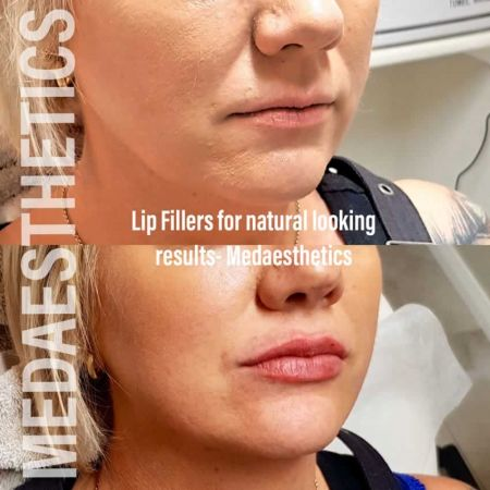 Medaesthetics - Lip Fillers - Before and After Picture 20200605233943 - Treatment performed by Doctor Ehsan Jadoon