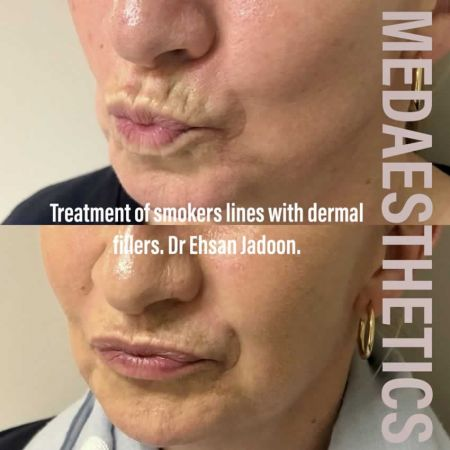 Medaesthetics - Lip Fillers - Before and After Picture 20200605233945 - Treatment performed by Doctor Ehsan Jadoon