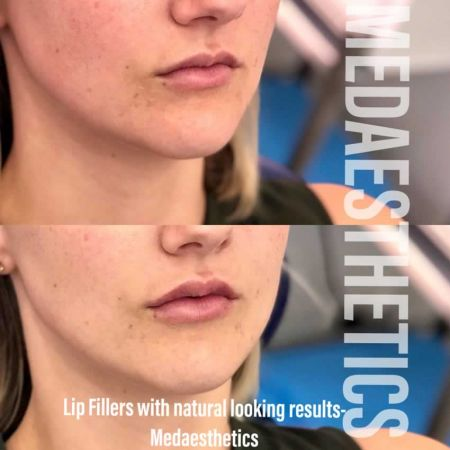Medaesthetics - Lip Fillers - Before and After Picture 20200605233954 - Treatment performed by Doctor Ehsan Jadoon