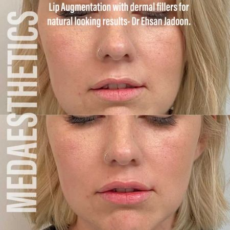 Medaesthetics - Lip Fillers - Before and After Picture 20200605233956 - Treatment performed by Doctor Ehsan Jadoon