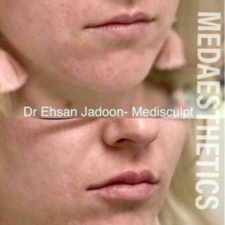 Medaesthetics - Lip Fillers - Before and After Picture 20200605233958 - Treatment performed by Doctor Ehsan Jadoon