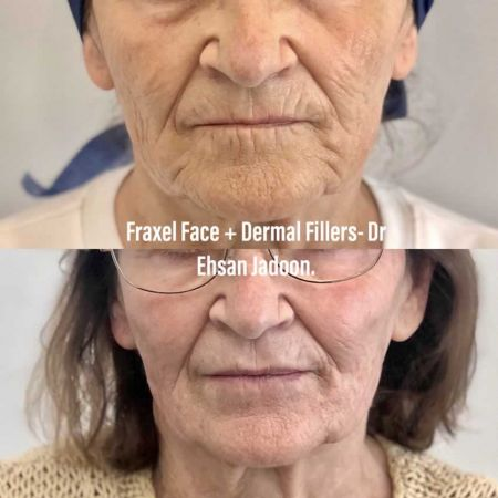 Medaesthetics - Lip Fillers - Before and After Picture 20200605234113 - Treatment performed by Doctor Ehsan Jadoon