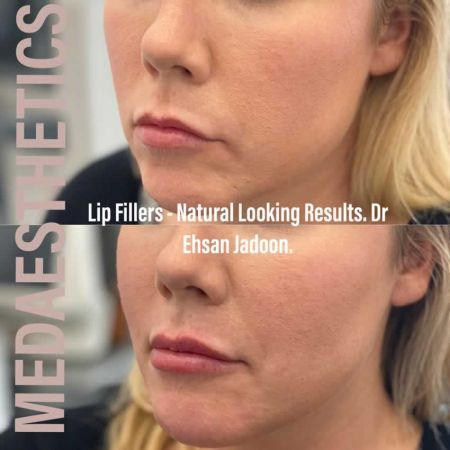 Medaesthetics - Lip Fillers - Before and After Picture 20200605234119 - Treatment performed by Doctor Ehsan Jadoon