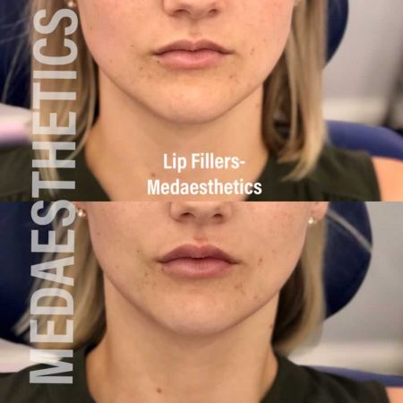 Medaesthetics - Lip Fillers - Before and After Picture 20200605234122 - Treatment performed by Doctor Ehsan Jadoon