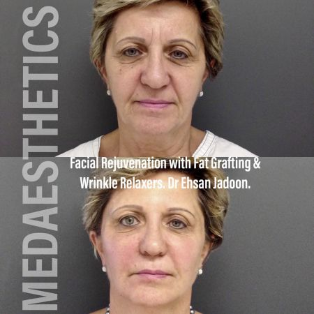 Medaesthetics - Liquid Face Lift - Before and After Picture 20200211105107 - Treatment performed by Doctor Ehsan Jadoon