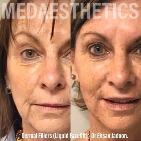 Medaesthetics - Liquid Face Lift - Before and After Picture 20200211105109 - Treatment performed by Doctor Ehsan Jadoon