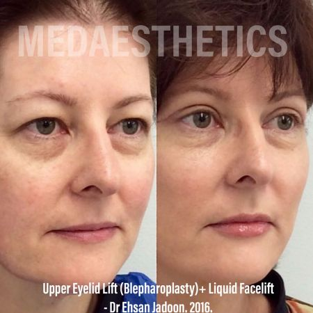 Medaesthetics - Liquid Face Lift - Before and After Picture 20200211105111 - Treatment performed by Doctor Ehsan Jadoon