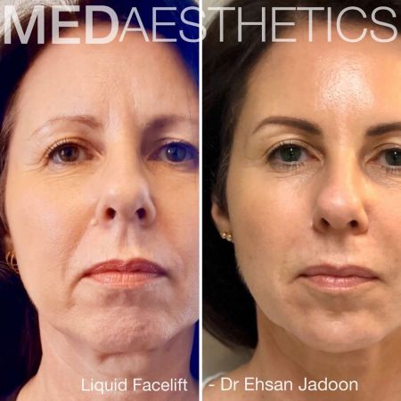 Medaesthetics - Liquid Face Lift - Before and After Picture 20200211105112 - Treatment performed by Doctor Ehsan Jadoon