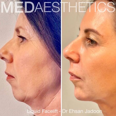Medaesthetics - Liquid Face Lift - Before and After Picture 20200211105113 - Treatment performed by Doctor Ehsan Jadoon