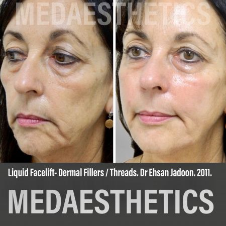 Medaesthetics - Liquid Face Lift - Before and After Picture 1200211105107 - Treatment performed by Doctor Ehsan Jadoon