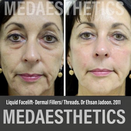 Medaesthetics - Liquid Face Lift - Before and After Picture 3300211105107 - Treatment performed by Doctor Ehsan Jadoon