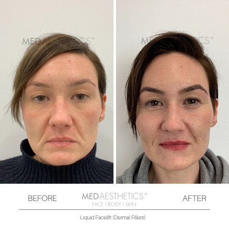 Medaesthetics - Liquid Face Lift - Before and After Picture 20200211105043 - Treatment performed by Doctor Ehsan Jadoon
