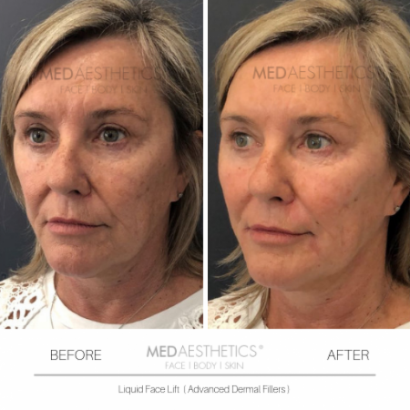 Medaesthetics - Liquid Face Lift - Before and After Picture 20200211105044 - Treatment performed by Doctor Ehsan Jadoon