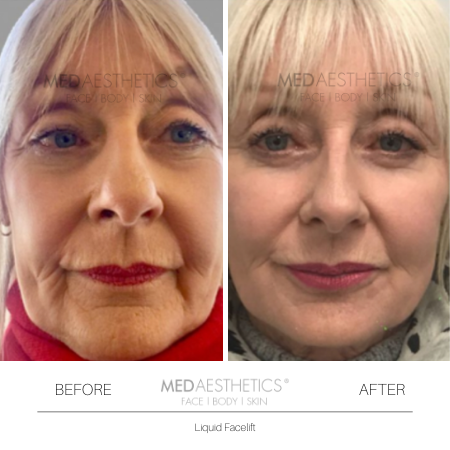 Medaesthetics - Liquid Face Lift - Before and After Picture 20200211105046 - Treatment performed by Doctor Ehsan Jadoon