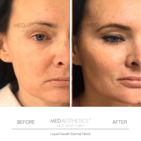 Medaesthetics - Liquid Face Lift - Before and After Picture 20200211105123 - Treatment performed by Doctor Ehsan Jadoon