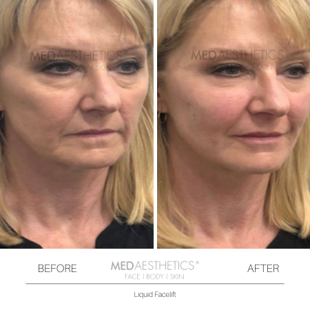 Medaesthetics - Liquid Face Lift - Before and After Picture 20200211105125 - Treatment performed by Doctor Ehsan Jadoon