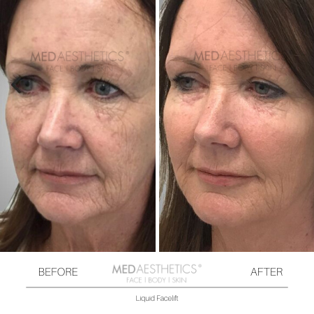 Medaesthetics - Liquid Face Lift - Before and After Picture 20200211105126 - Treatment performed by Doctor Ehsan Jadoon