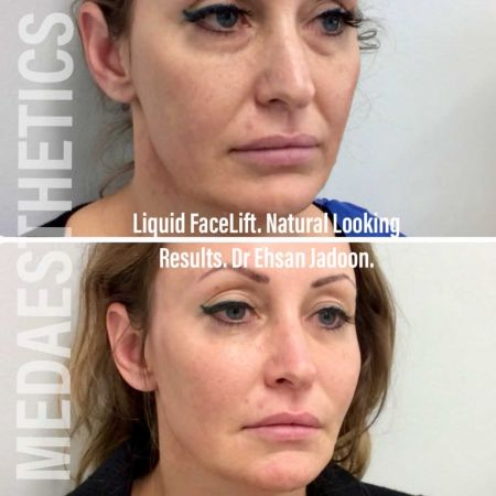 Medaesthetics - Liquid Face Lift - Before and After Picture 20200521205137 - Treatment performed by Doctor Ehsan Jadoon