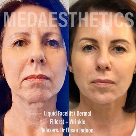 Medaesthetics - Liquid Face Lift - Before and After Picture 20200611100324 - Treatment performed by Doctor Ehsan Jadoon