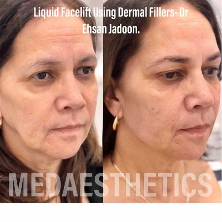 Medaesthetics - Liquid Face Lift - Before and After Picture 20200611100326 - Treatment performed by Doctor Ehsan Jadoon