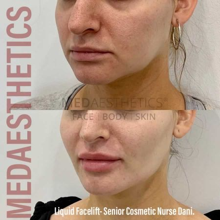 Medaesthetics - Liquid Face Lift - Before and After Picture 20200611100329 - Treatment performed by Doctor Ehsan Jadoon