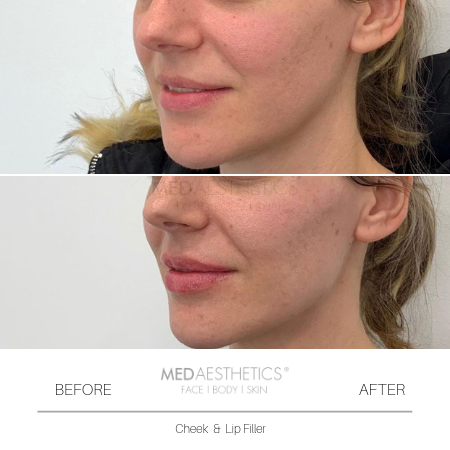 Medaesthetics - Cheek Fillers - Before and After Picture 20200210121338 - Treatment performed by Doctor Ehsan Jadoon