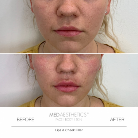 Medaesthetics - Cheek Fillers - Before and After Picture 20200210121339 - Treatment performed by Doctor Ehsan Jadoon