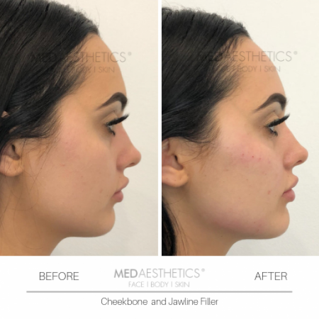Medaesthetics - Cheek Fillers - Before and After Picture 20200210121340 - Treatment performed by Doctor Ehsan Jadoon