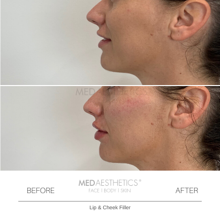 Medaesthetics - Cheek Fillers - Before and After Picture 20200210121341 - Treatment performed by Doctor Ehsan Jadoon