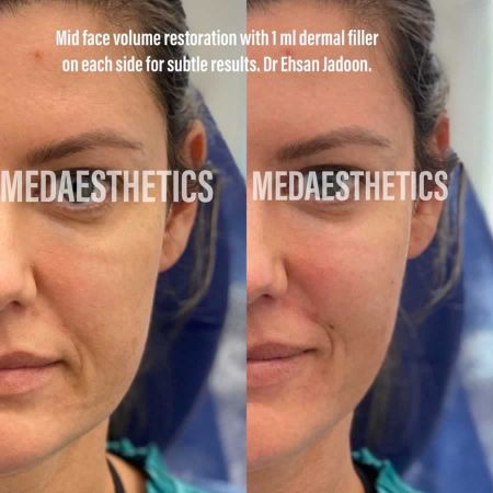 Medaesthetics - Cheek Fillers - Before and After Picture 20200611102049 - Treatment performed by Doctor Ehsan Jadoon