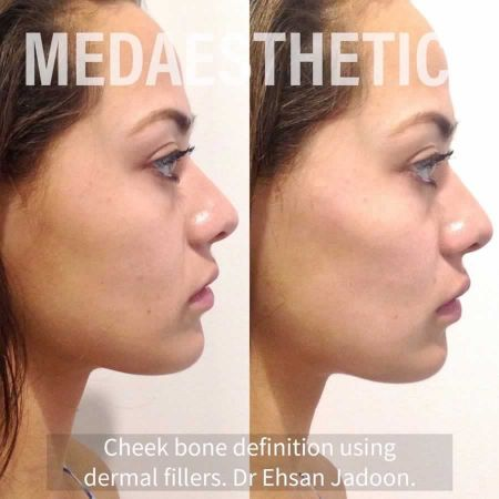 Medaesthetics - Cheek Fillers - Before and After Picture 20200611102101 - Treatment performed by Doctor Ehsan Jadoon