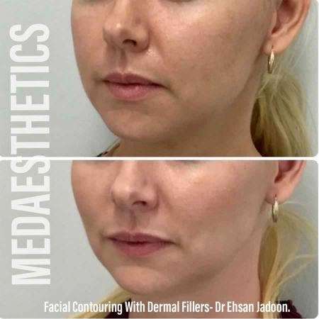 Medaesthetics - Cheek Fillers - Before and After Picture 20200611102103 - Treatment performed by Doctor Ehsan Jadoon