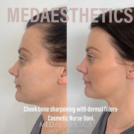 Medaesthetics - Cheek Fillers - Before and After Picture 20200611102105 - Treatment performed by Doctor Ehsan Jadoon