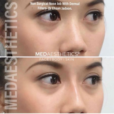 Medaesthetics - Nose Fillers - Before and After Picture 20200427131611 - Treatment performed by Doctor Ehsan Jadoon