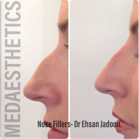 Medaesthetics - Nose Fillers - Before and After Picture 20200427131601 - Treatment performed by Doctor Ehsan Jadoon