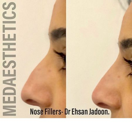 Medaesthetics - Nose Fillers - Before and After Picture 20200427131612 - Treatment performed by Doctor Ehsan Jadoon
