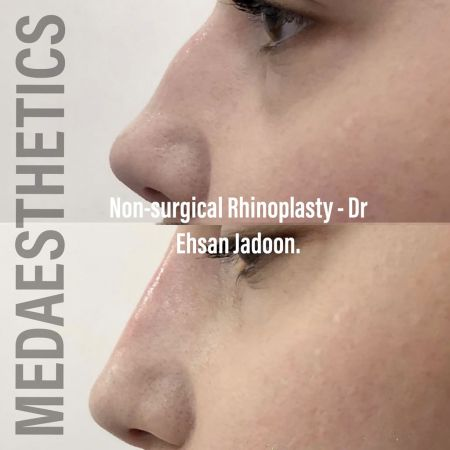 Medaesthetics - Nose Fillers - Before and After Picture 20200427131616 - Treatment performed by Doctor Ehsan Jadoon