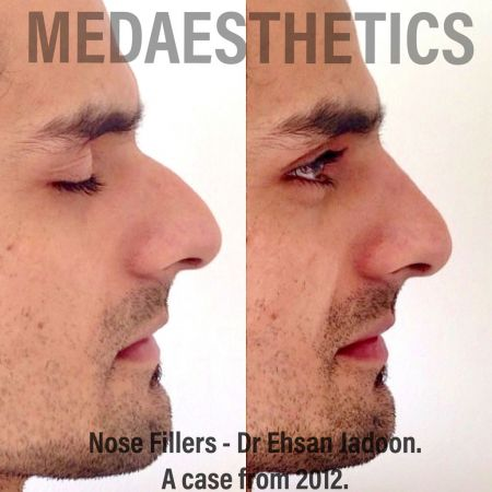 Medaesthetics - Nose Fillers - Before and After Picture 20200427131617 - Treatment performed by Doctor Ehsan Jadoon
