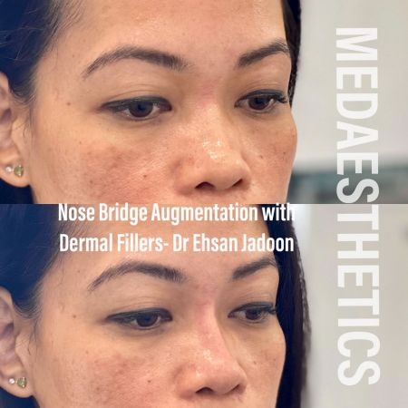 Medaesthetics - Nose Fillers - Before and After Picture 20200427131620 - Treatment performed by Doctor Ehsan Jadoon