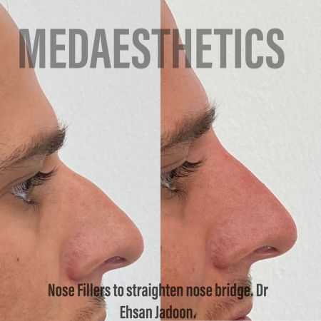 Medaesthetics - Nose Fillers - Before and After Picture 20200427131623 - Treatment performed by Doctor Ehsan Jadoon